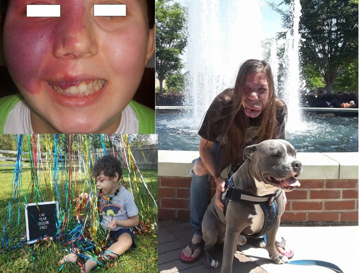 Sturge weber can cause loss of teeth and disfigurement of patients along with seizures.