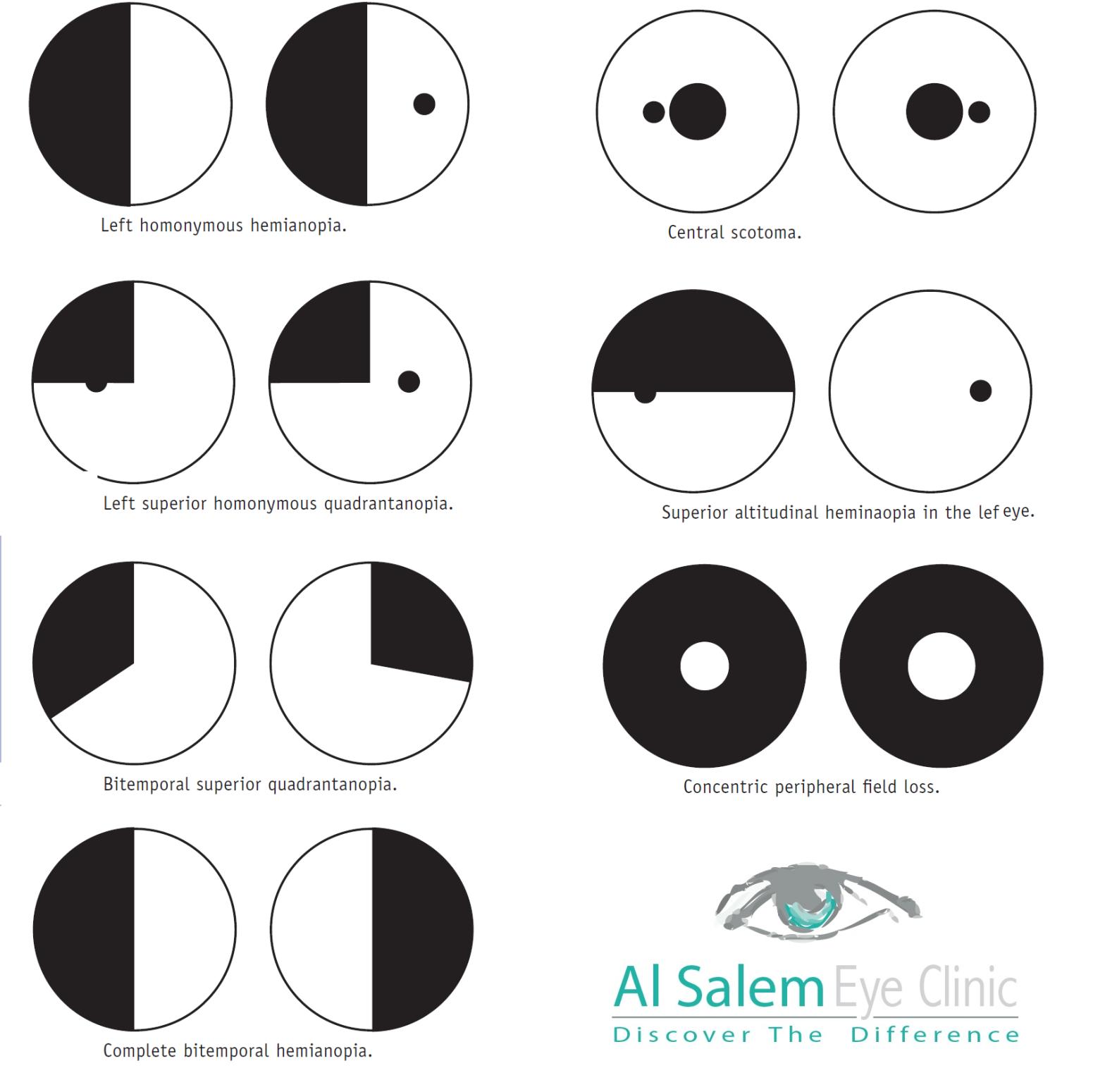 AL-Salem Eye Clinic