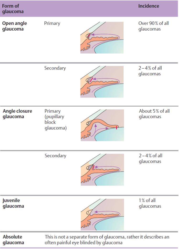 table glaucoma 2